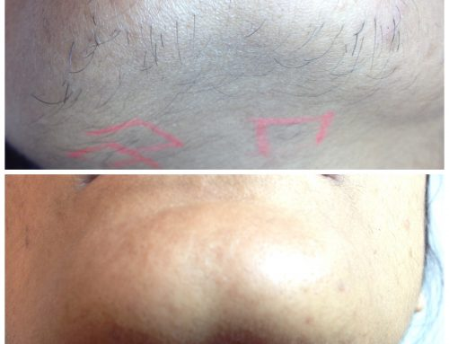 Hair removal not working?