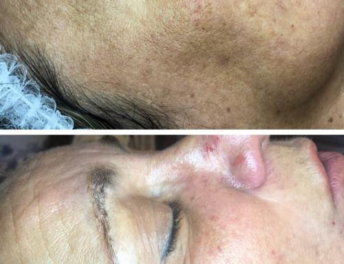 Skin needling for great skin!