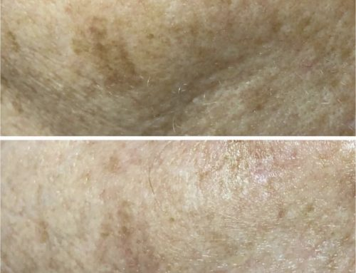 Treatment for pigmentation!